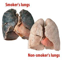 pulmões de fumante e não fumante