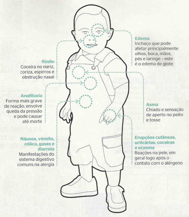 Alergia-bebe-1a
