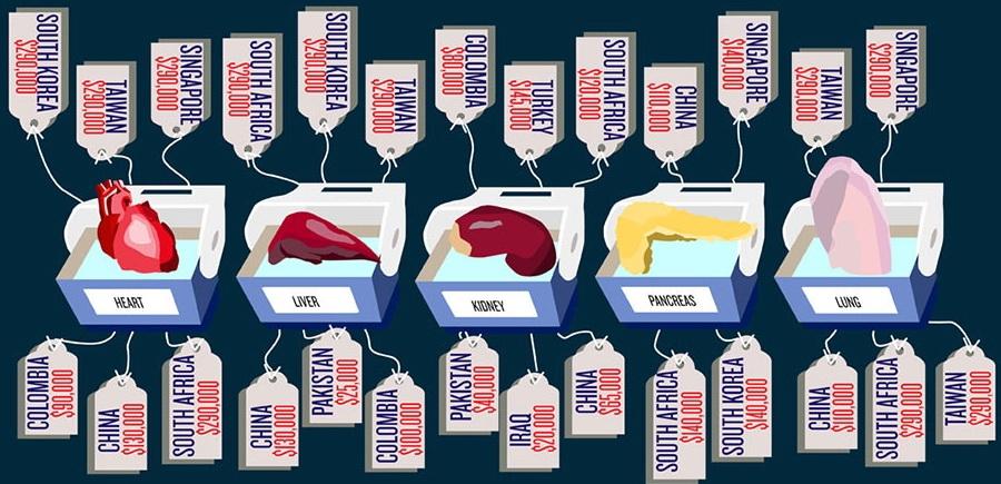 organ-harvesting-cost-chart
